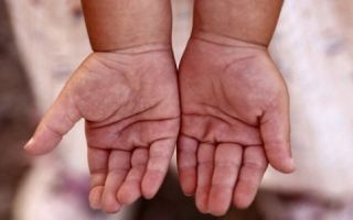 Линия жизни на руке у ребенка: короткая, расшифровка и что означает залом?