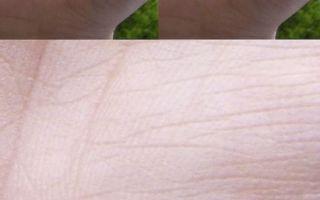 Разрыв на линии жизни: на руке, прерывается, а потом продолжается