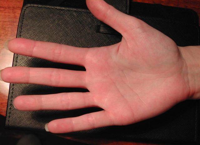 Точка на линии жизни: красная, на правой руке, хиромантия