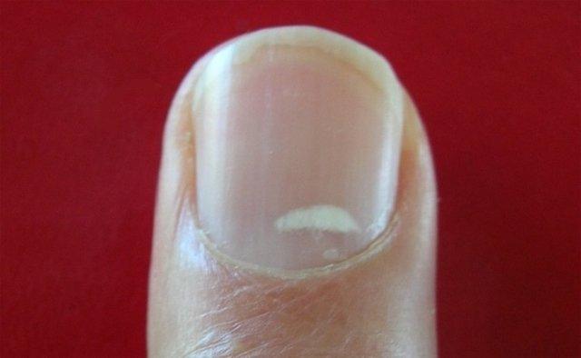 Белые пятна на ногтях: приметы, к чему
