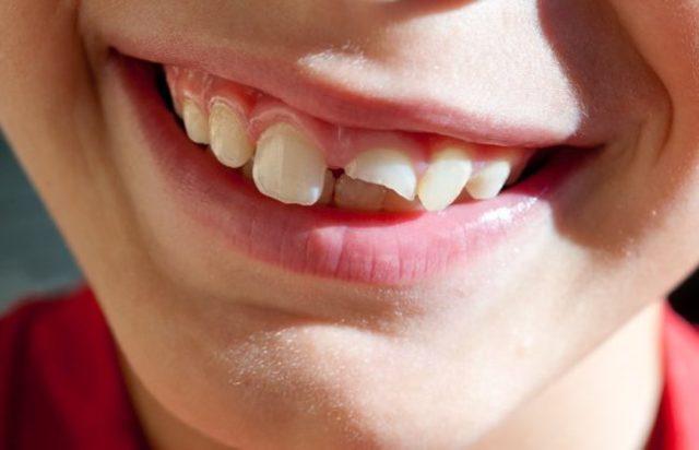 Примета: сломался зуб, откололся кусочек, к чему