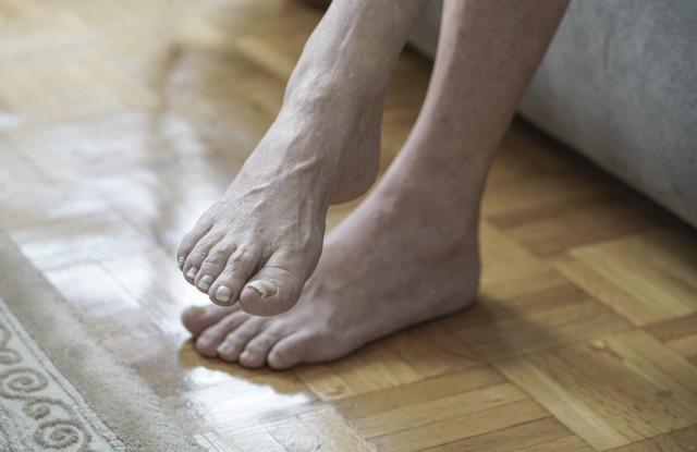 Порча на ноги: как определить, снять, сделать