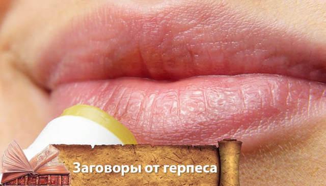 Заговор от герпеса: генитального, на губах, навсегда