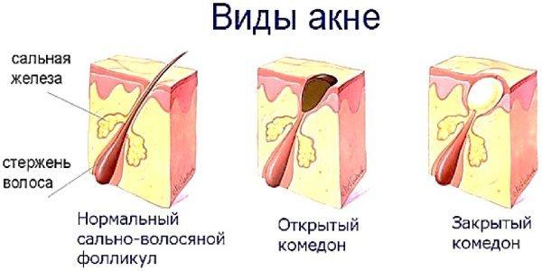 Прыщик на носу: примета, у девушки, справа и слева