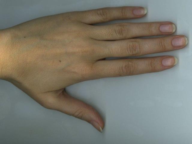 Родинка на линии Жизни: на левой и правой руке в хиромантии, значение цвета и формы пятна