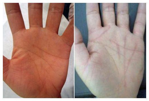 Могут ли меняться линии на руке: в течение жизни, как изменить, хиромантия