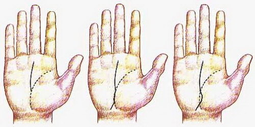 Разрыв на линии ума (головы): правая рука, прерывается и продолжается, хиромантия